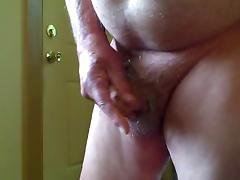 My foreskin